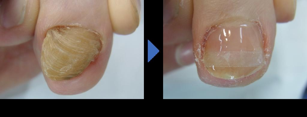 変形爪の施術前後の写真 埼玉巻き爪矯正院 大宮院