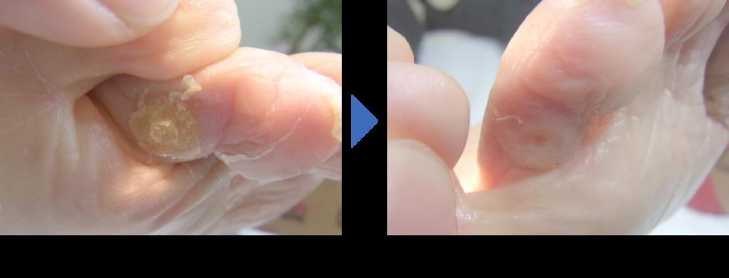 ウオノメ症例 埼玉巻き爪矯正院大宮院