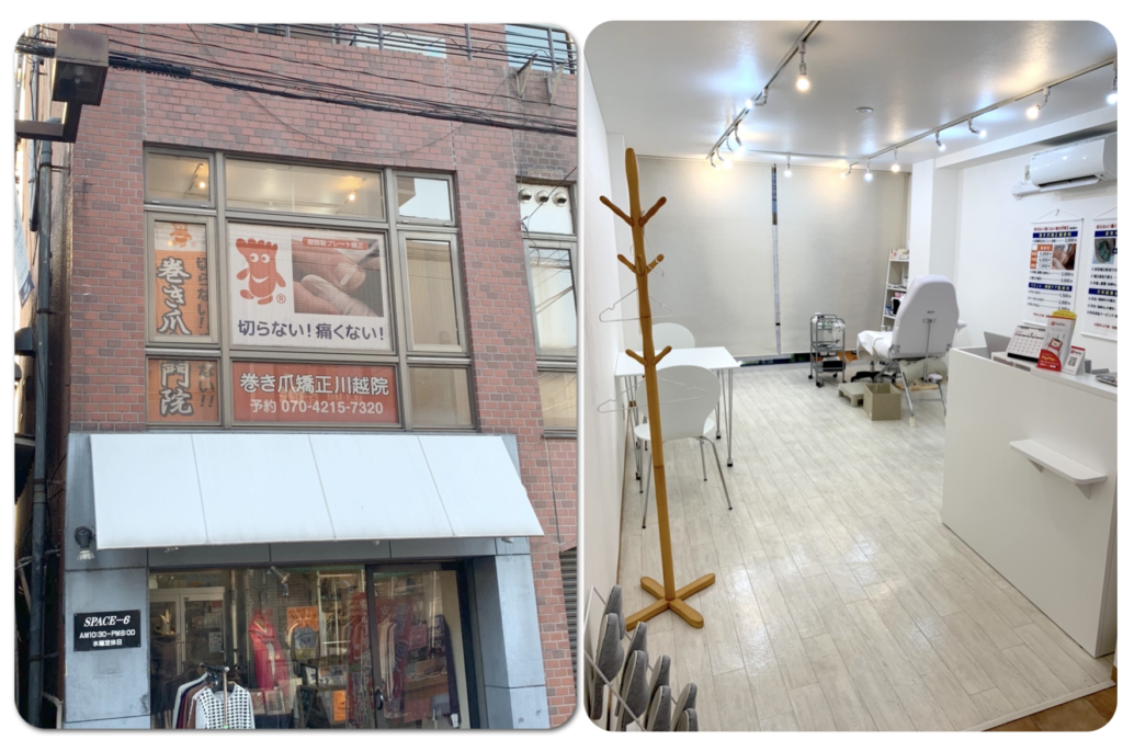 川越市の巻き爪専門といえば埼玉巻き爪矯正院外観と内観写真