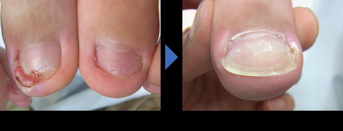 埼玉巻き爪矯正院の陥入爪(深爪)の回復例