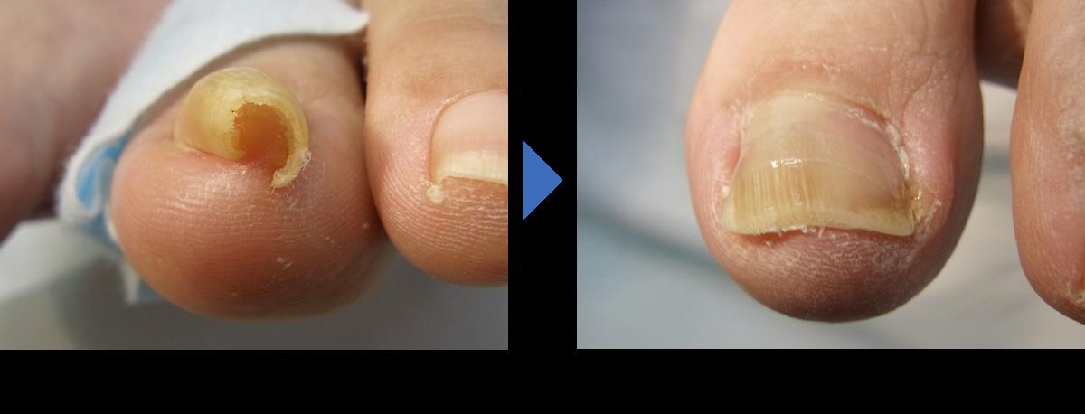 埼玉巻き爪矯正院の(重度)の回復例2