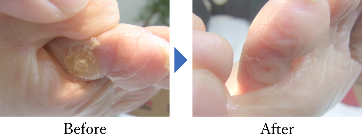 巻き爪(重度)の回復例