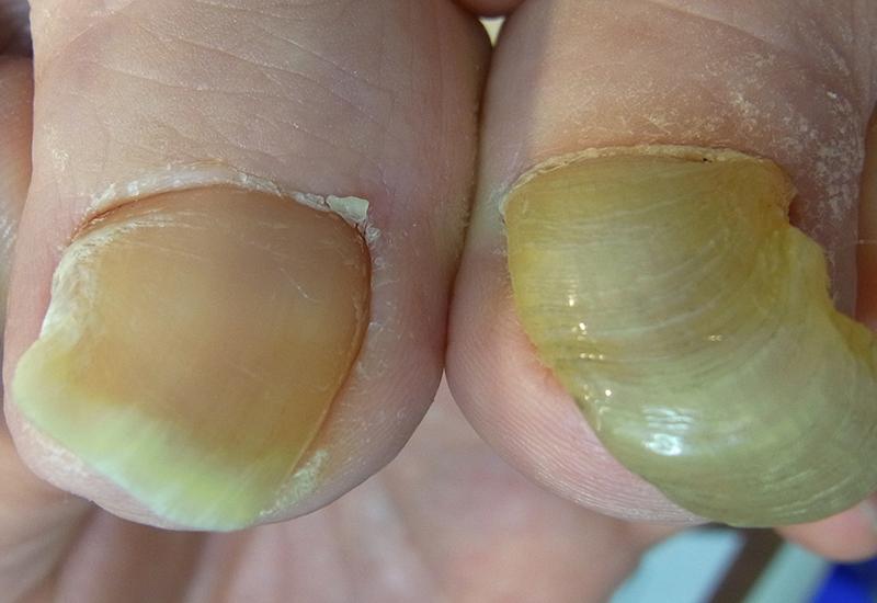 変形爪の参考例