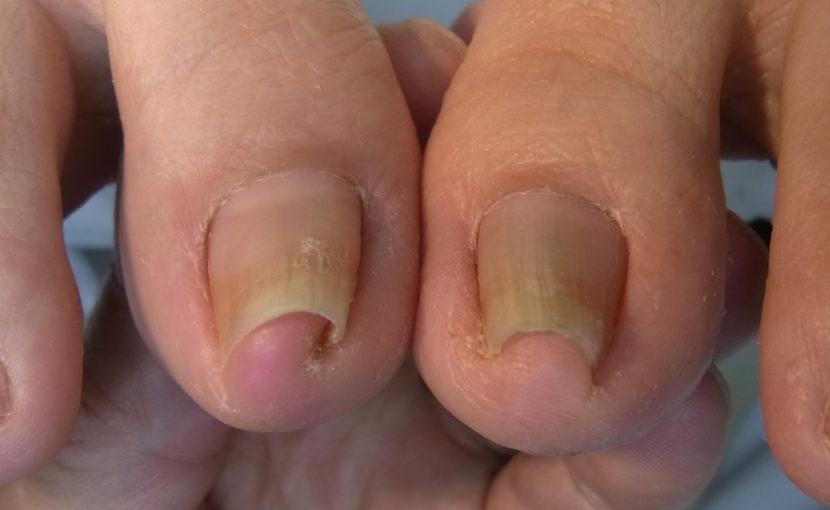 埼玉巻き爪矯正院大宮院重度の巻き爪患者写真