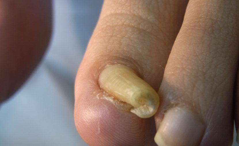 さいたま巻き爪矯正院弯曲爪症例