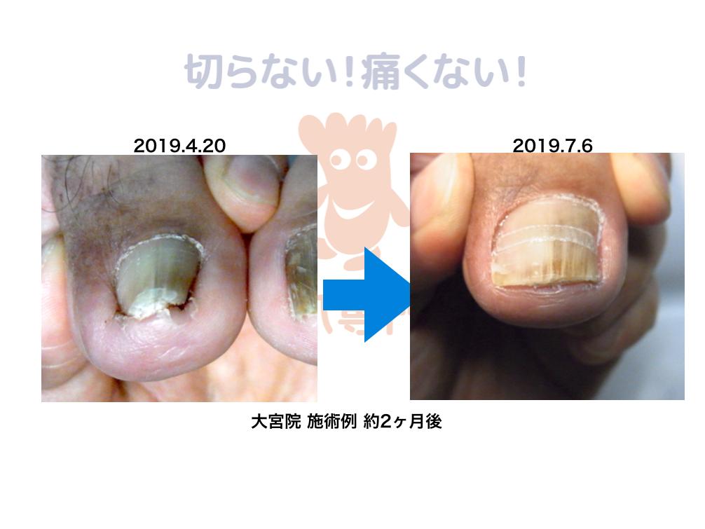 埼玉巻き爪矯正院 O-42 巻き爪施術例