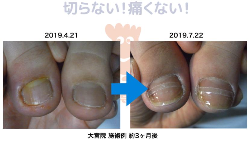 陥入爪の改善例 大宮巻き爪矯正院