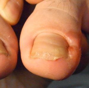 O-77 陥入爪患者 施術前写真