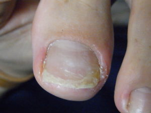 O-77 陥入爪患者 施術後写真