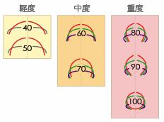 巻き爪の角度