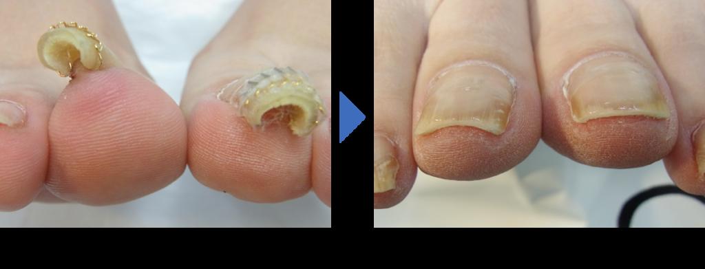重度巻き爪の施術前後の症例写真 埼玉巻き爪矯正院