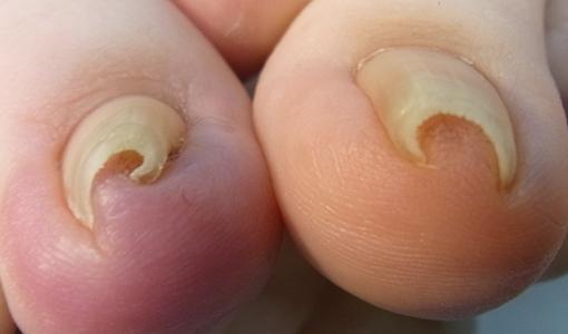 川越市巻き爪専門院 巻き爪画像 埼玉巻き爪矯正院