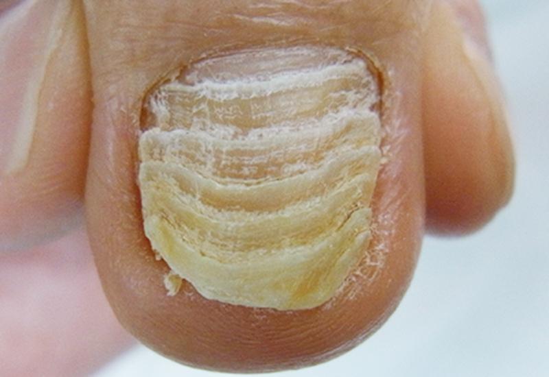 埼玉巻き爪矯正院 肥厚し段々になった変形爪