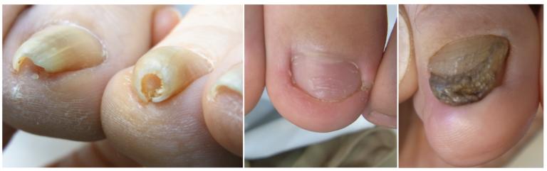 浦和の巻き爪専門 陥入爪変形爪の症例写真