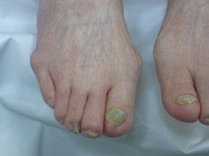 外反母趾と爪の変形、爪白癬