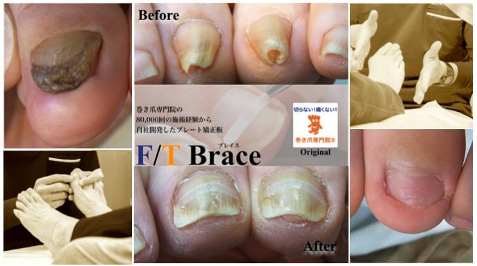 浦和の巻き爪専門院オリジナル巻き爪矯正器具