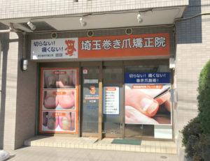 川口市の巻き爪専門院