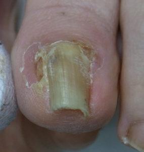 巻き爪治療のフェノール手術