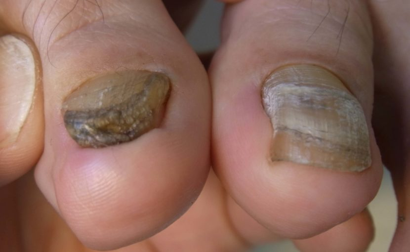 肥厚爪変形の例
