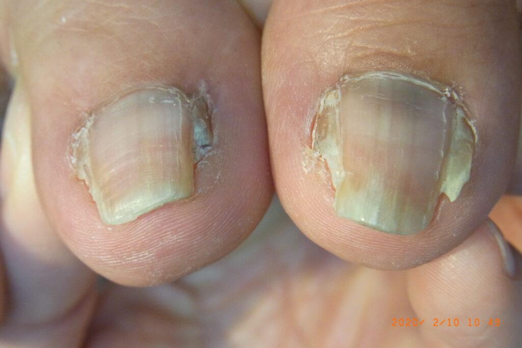 フェノール法による巻き爪手術後