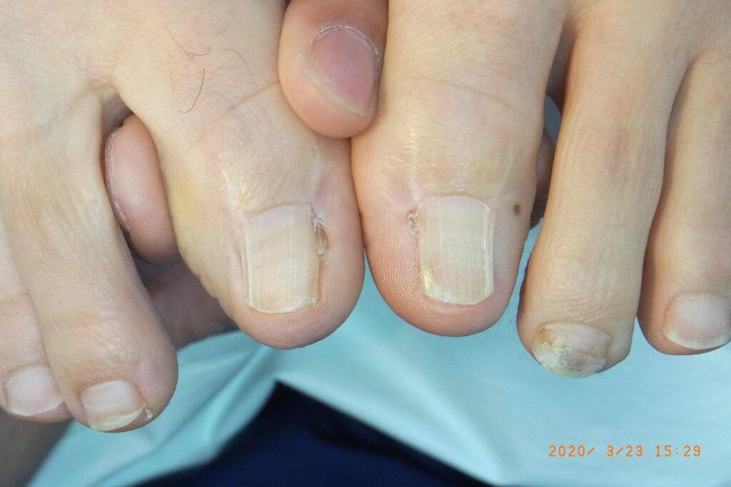 鬼塚法による巻き爪の手術